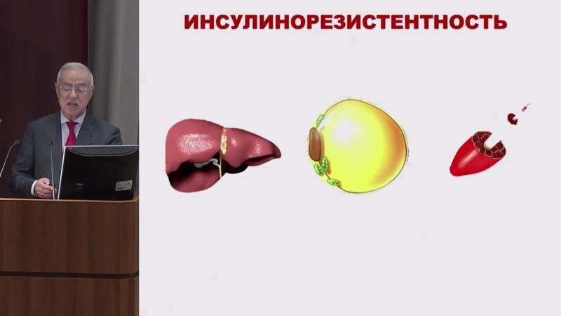 Аметов А.С., Многозадачность лечения сахарного диабета 2 типа в практике эндокринолога ...