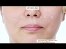 Maxclinic lifting cirmage stick лифтинг-СТИК