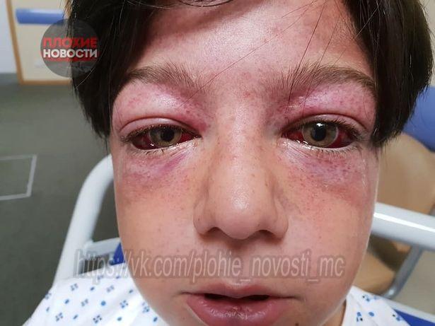 «Адская карусель»: 11-летний мальчик едва не погиб