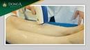Triệt lông chân bằng công nghệ Diode Laser tại TMV Đông Á