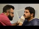 Пересадка волос в зону породы. Клиника ShifaHair