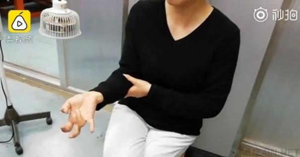 Жительница Китая недавно обнаружила, что у неё отказали пальцы на правой руке после того, как она весь свой недельный отпуск провела, играя в видеоигры на смартфоне.