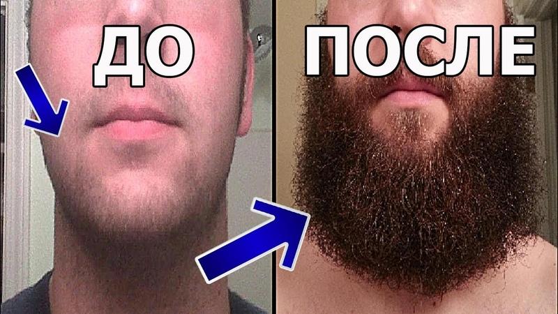 Миноксидил kirkland для быстрого роста бороды - МЕГА РЕЗУЛЬТАТЫ | Как правильно отрастить бороду