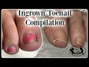 👣Satisfying Ingrown Toenail Pedicure Compilation👣