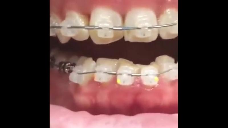 ортодонтия.mp4