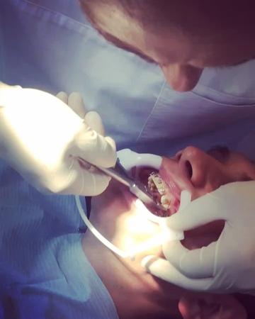 """""""Будни ортодонта. Рождение красивой улыбки😊 Этап замены дуги. Врач стоматолог @alisamed.ru Гапонов Константи..."""