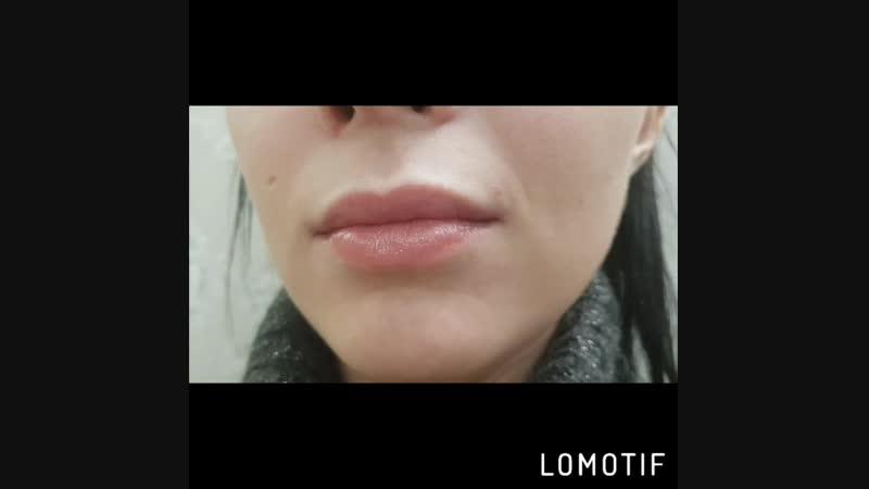 Увеличение губ филлером гиалуроновой кислоты Hyaloform