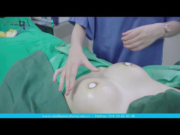 Nâng ngực nội soi - Biện pháp giúp cải thiện ngực lép nhanh chóng và an toàn