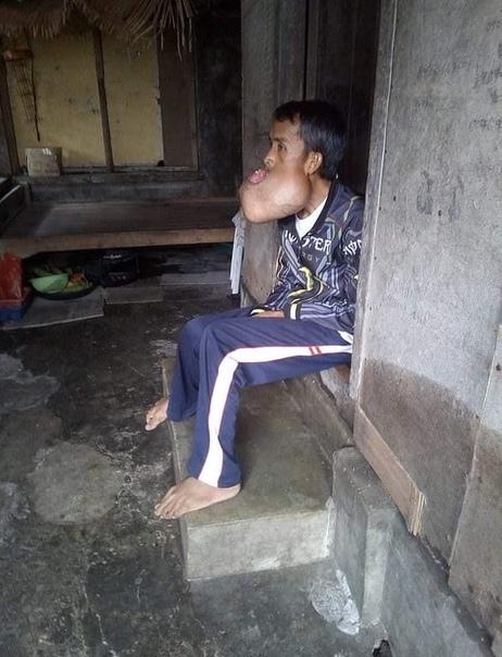 Огромная опухоль вместо рта образовалась у строителя из-за травмы во время баскетбола В возрасте 23 лет филиппинец Леонардо Морис получил травму во время игры в баскетбол и его челюсть