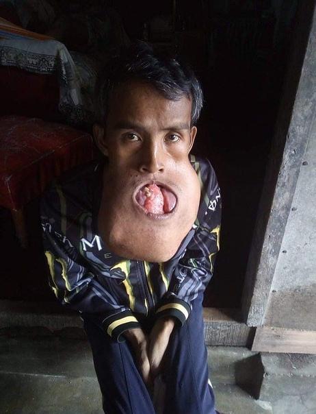 Огромная опухоль вместо рта образовалась у строителя из-за травмы во время баскетбола