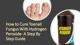 How to Cure Toenail Fungus With Hydrogen Peroxide- A Step By Step Guide