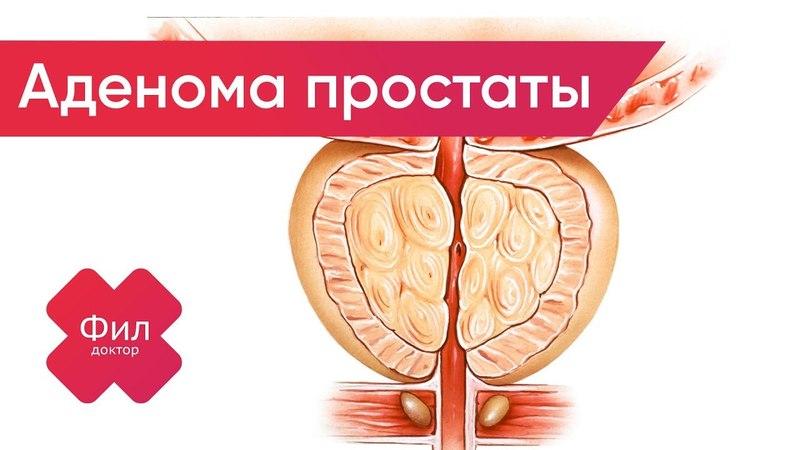 АДЕНОМА Простаты Лечение   АДЕНОМА Предстательной Железы Лечение   Аденома простаты симптомы