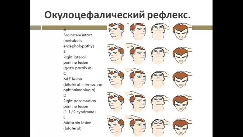 Особенности неврологического осмотра в нейрореанимации сосудистого центра Буркова К.И. ОАР РСЦ Томск