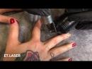 Быстрое и качественное удаление тату