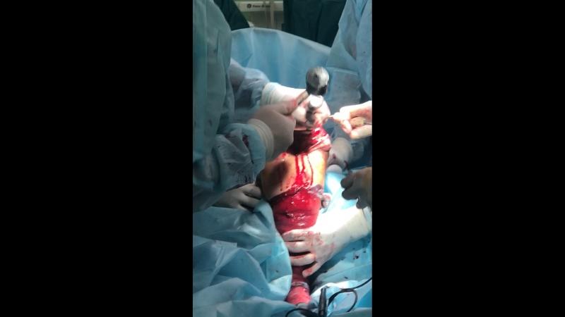 ГТМБ эндопротезирование коленного сустава