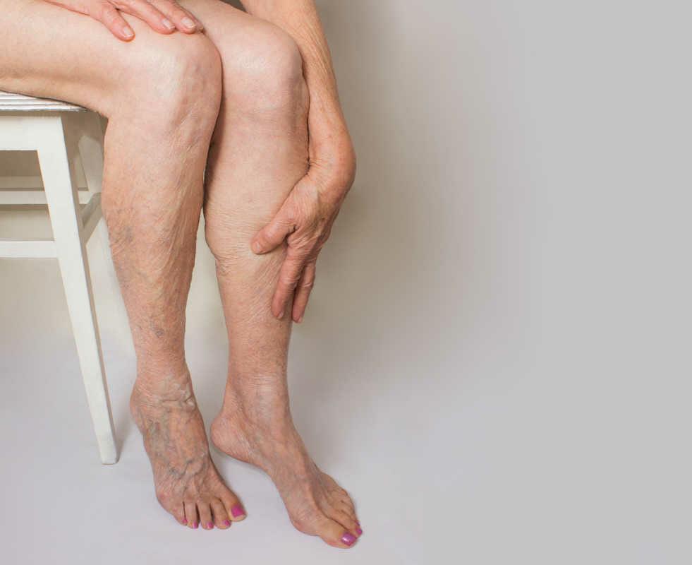 Ваш путеводитель по варикозному расширению вен на ногах