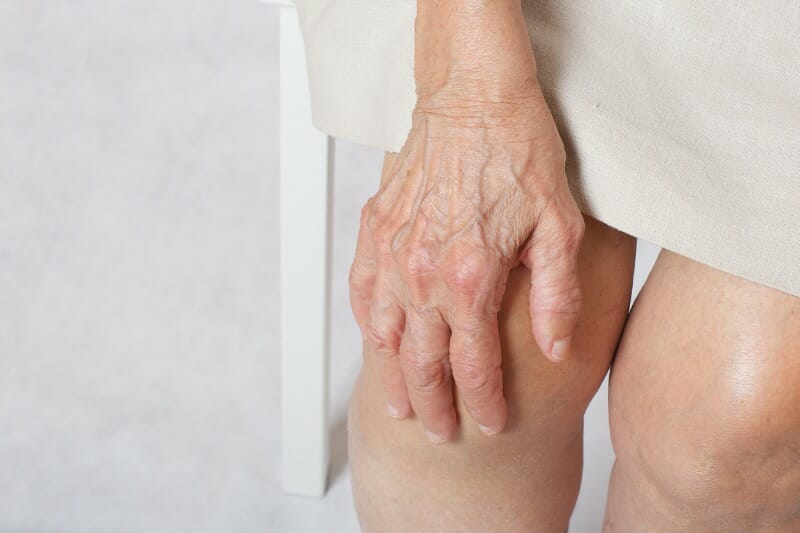 Поверхностный тромбофлебит: симптомы и лечение