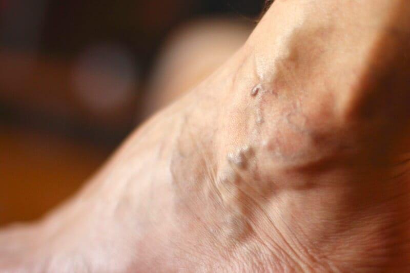 Что такое поверхностный тромбоз вен и как его лечить?