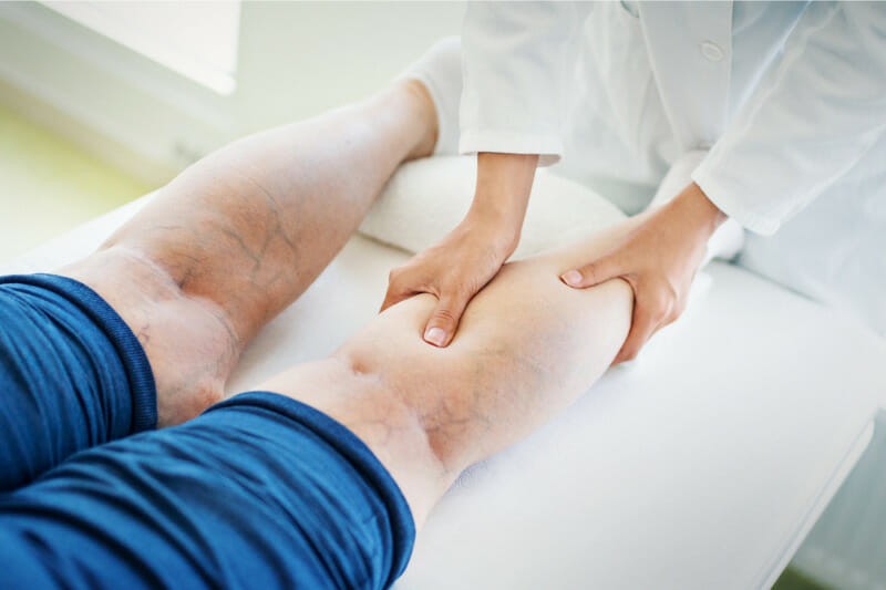 Преимущества интервенционного и консервативного лечения пациентов с варикозным расширением вен
