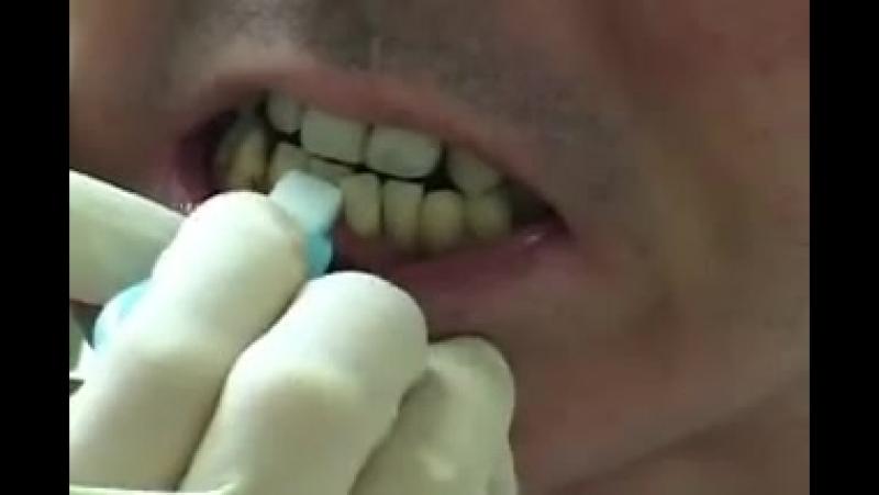 Dental Peeling Sponge
