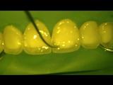 Direct composite restoration for Style Italiano. Прямая композитная реставрация передних зубов Dr. Denis Krutikov.Стоматология.