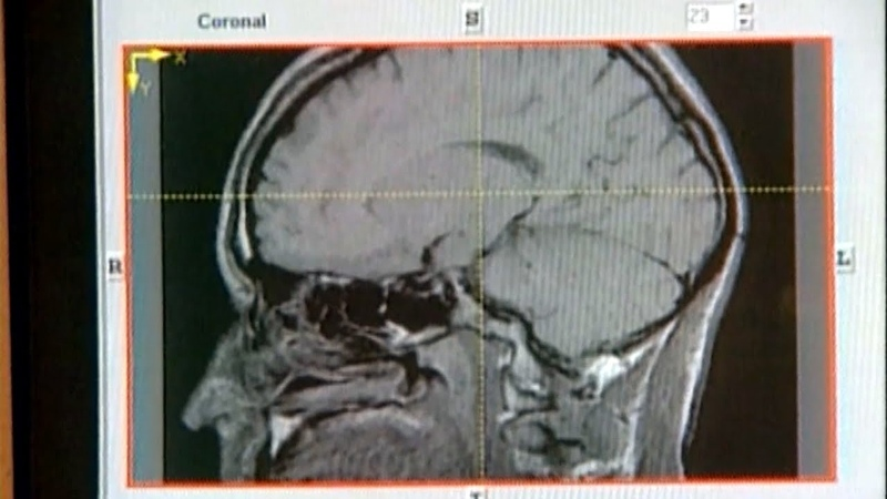 Дилеммы нейроэтики Как сохранить мозг и личность