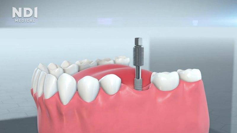 Installation tips of NDI dental implants system