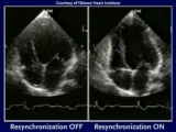Demonstration of the efficacy of CRT (Cardiac Resynchronization) with Echocardiogram.mp4