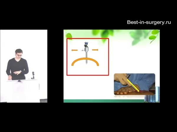 Основы лапароскопии в гинекологии профессор д м н Пучков К В к м н Пучков Д К