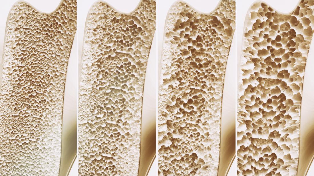 Насколько эффективен деносумаб для остеопороза?