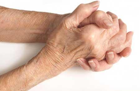Капсаицин часто используется в кремах для временного облегчения боли при артрите