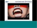 Вебинар Kerr Успешное выполнение непрямых безметалловых реставраций жевательной группы зубов