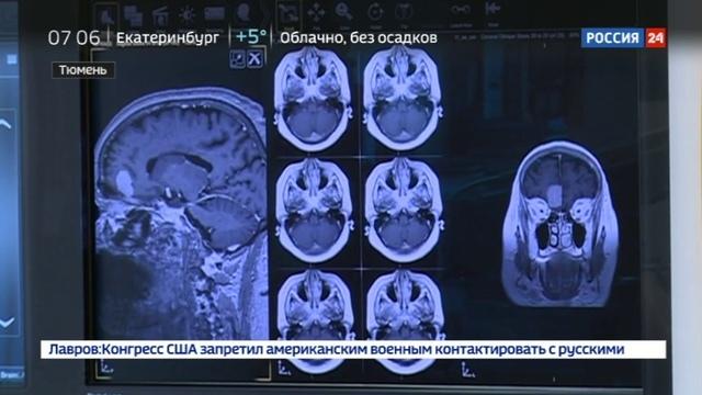 Новости на Россия 24 • Волшебники в белых халатах: тюменские врачи спасли мальчика, умиравшего от опухоли мозга