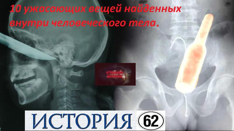 История 62 - 10 ужасающих вещей найденных внутри человеческого тела.