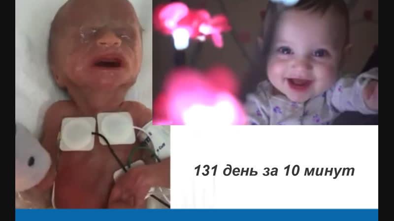 День за днём врачи вхаживают малышку 26 недель