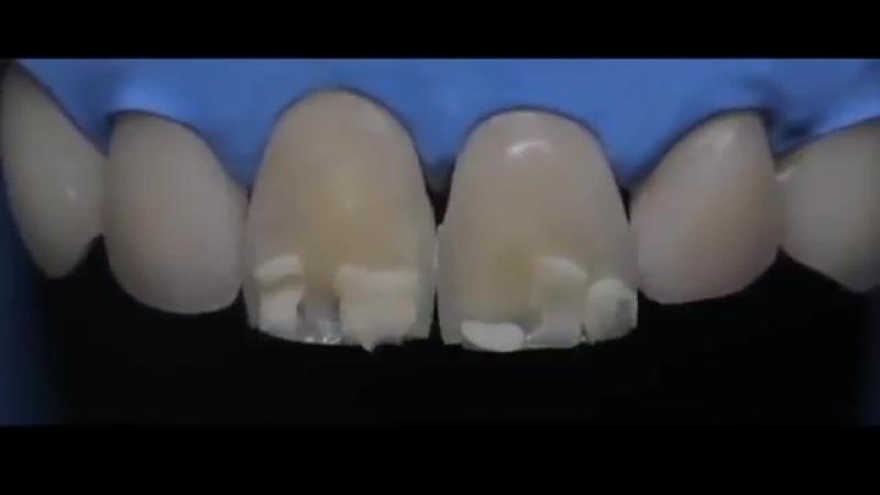 Реставрация зубов в Семейной Стоматологии Наша Клиника