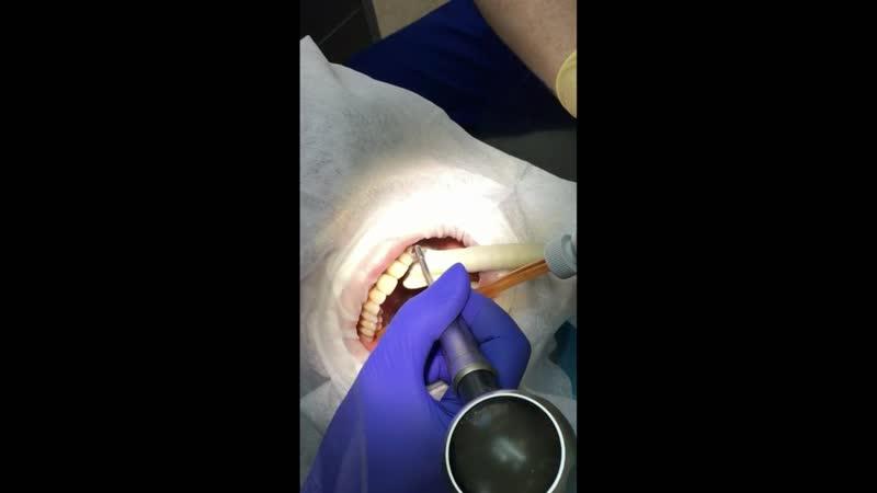 Профессиональная чистка зубов AirFlow со скидкой 50%