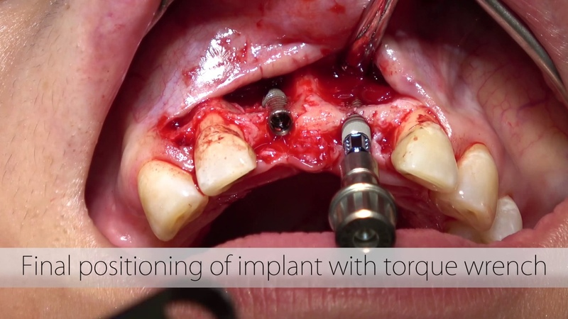 BLT Implant Placement in anterior central incisors site with Guided Bone Regeneration - 4K
