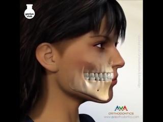 Создание идеальной улыбки