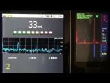 EMF (set baseline). EMF pulses (0.25, 0.55Hz). Audio (probably Microwave EMF).