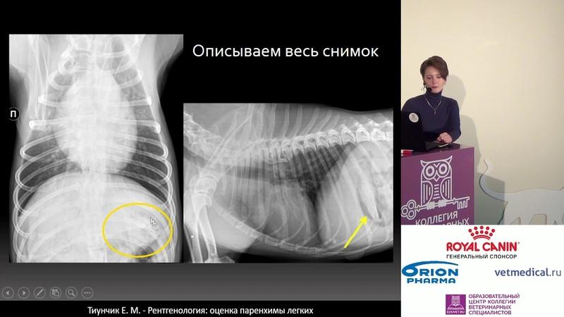 Тиунчик Е. М. - Рентгенология оценка паренхимы легких