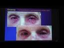 Современные алгоритмы лечения блефаритов