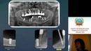 Чибисова М.А. Конусно-лучевая и мультисрезовая КТ при исследовании челюстно-лицевой области