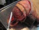 Вскрытие человека (морг) Human autopsy ..