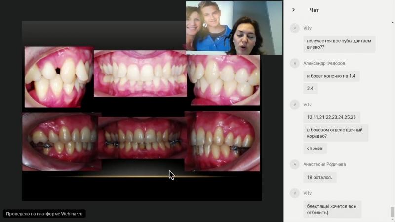 Марина Дубовская Абсолютная опора в ортодонтии и микроимпланты в ежедневной практике