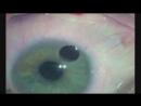 Удаление катаракты. Операция.