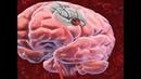 Ишемический инсульт применение Трансфер Фактора