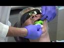 Снятие слепка с беззубной челюсти Ортопедическая стоматология