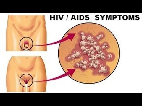 How HIV Affects the Body