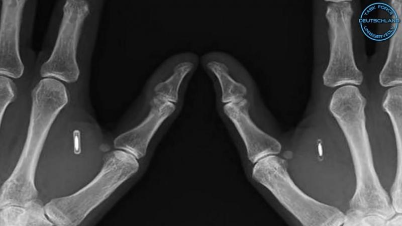 RFID-Implantat- Bald Pflicht! - Keine Verschwörungstheorie!